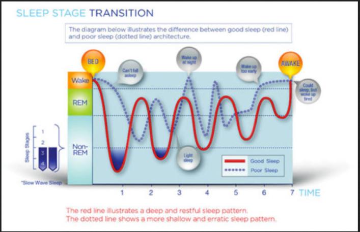 sleep stage transition