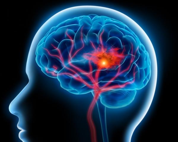 stroke early symptoms